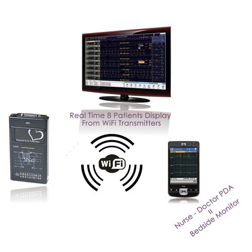 Cardiovascular Monitoring System : Overview description